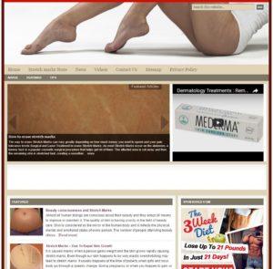 Stretch Marks Niche Website
